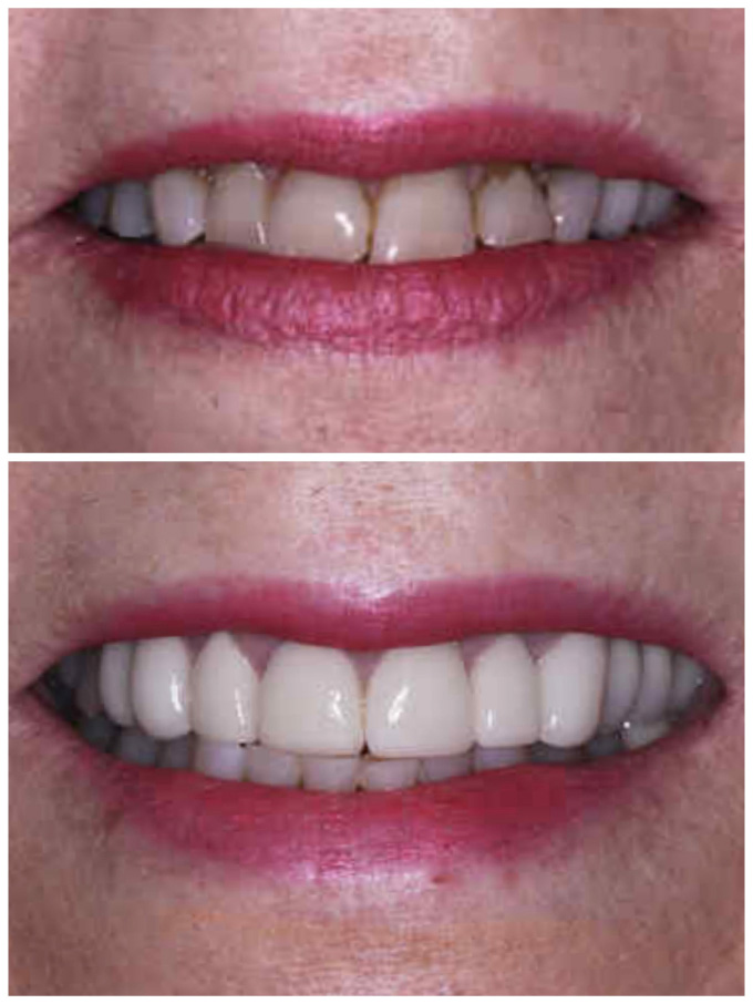 crowns and bridge before & after