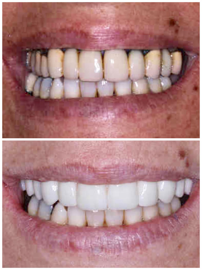 implant bridge before & after