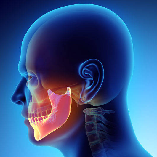 TMJ jaw pain image