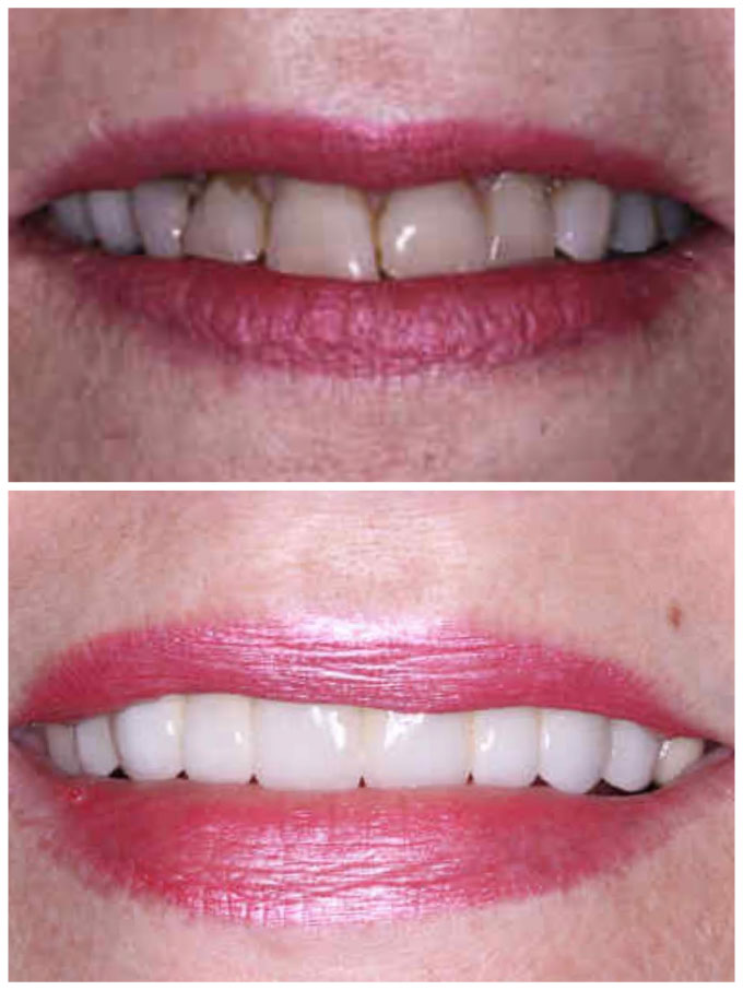 replace old crowns before & after