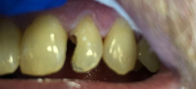 broken tooth before